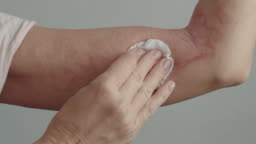 woman with dermatitis using treatment solution