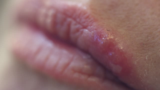 ecu woman with herpes simplex - herpes video stock e b–roll