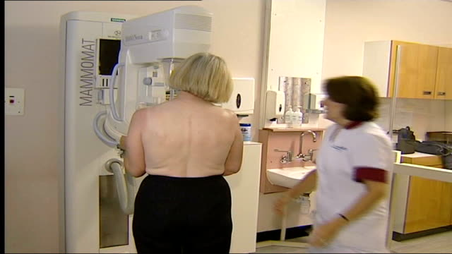 women given wrong breast cancer results; file / r25040301 woman having mammogram taken - scientific imaging technique stock videos & royalty-free footage