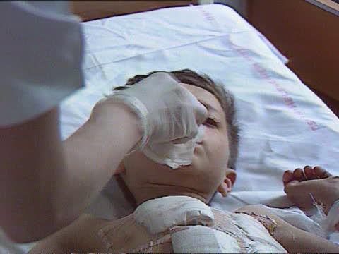 wounded child refugees:; d)nao 13.4.93 bosnia-herzegovina: tuzla: tuzla hospital: int male medic picks up end of stretcher l-r as doctor gives... - bosnia and hercegovina stock videos & royalty-free footage