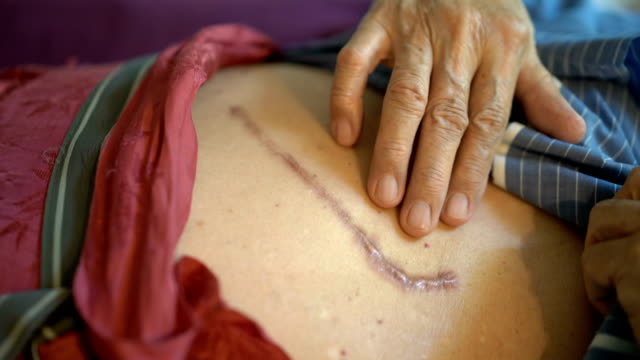 cu wrinkled senior man touching lesion scar of surgery - cicatrice video stock e b–roll