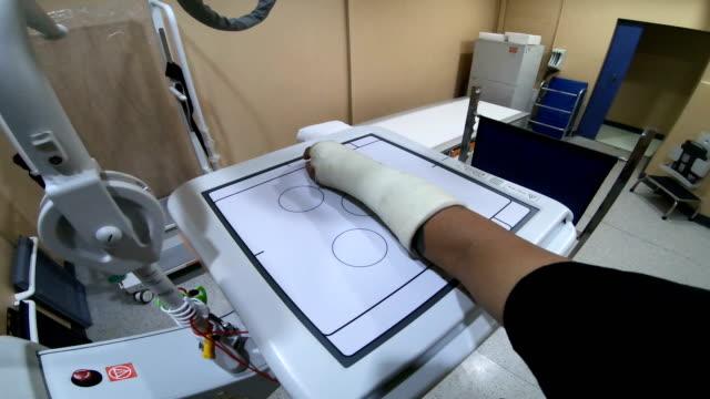 pov: röntgen-arm mit schiene. - medizinisches röntgenbild stock-videos und b-roll-filmmaterial