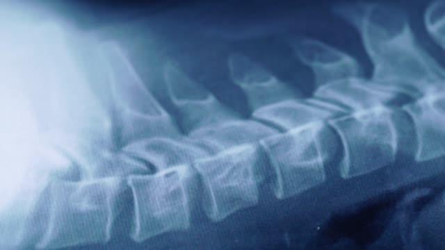 x-ray der halswirbelsäule - halswirbelsäule stock-videos und b-roll-filmmaterial