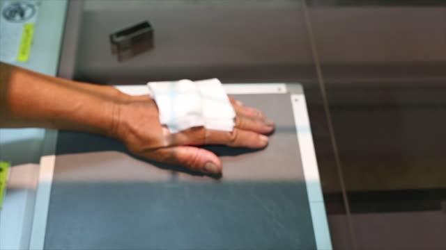 X-ray hand.