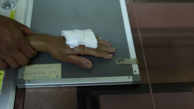 vidéos et rushes de x-ray main. - boîte de film
