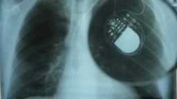 X-Ray Image of Chest with Artificial Cardiac Pacemaker Under Magnifying Glass