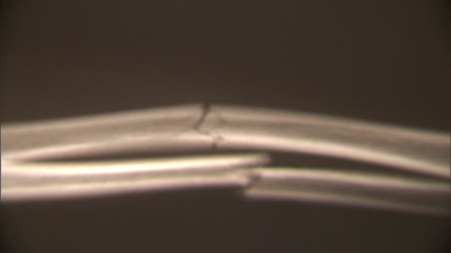 ECU, FOCUSING, X-ray image of fractured human bone