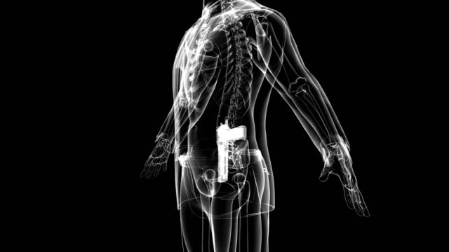 X-ray image of man with weapon