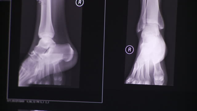CU PAN TD X-ray images of ankle at different angles on computer screen / South Burlington, Vermont, USA