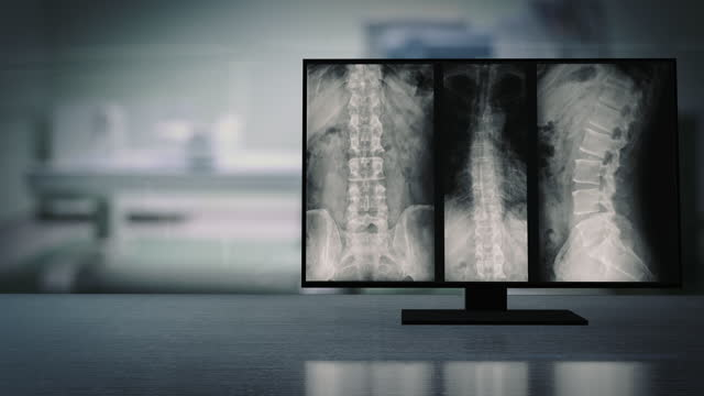 x-ray monitor of the thoracic-lumbar spine. - cerebellum stock videos & royalty-free footage