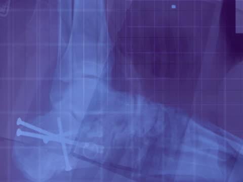stockvideo's en b-roll-footage met cu cgi x-ray montage  - biomedische illustratie