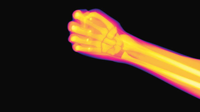 X-ray of a hand performing the actions of rock paper scissors