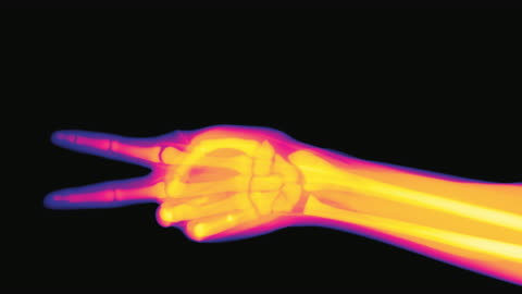 x-ray of a hand performing the actions of rock paper scissors - human arm stock videos & royalty-free footage