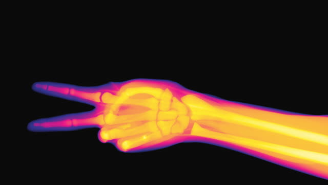 vídeos de stock e filmes b-roll de x-ray of a hand performing the actions of rock paper scissors - raio x