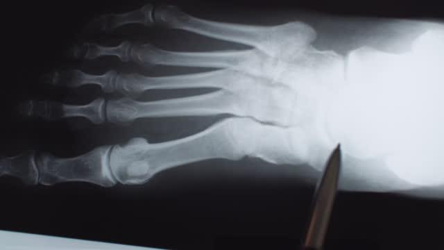 足のx線 - 骨折点の映像素材/bロール