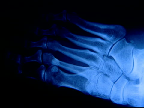 X-ray of human foot