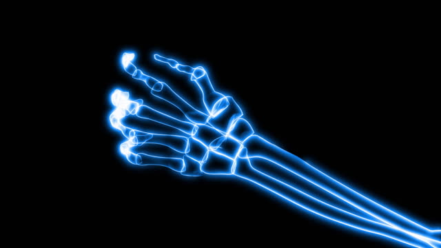 stockvideo's en b-roll-footage met x-ray of human hand grasping (hd) - medische röntgenfoto
