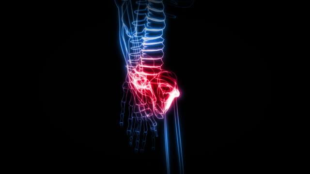 x-ray of human skeleton (hd - knochen im beckenbereich stock-videos und b-roll-filmmaterial