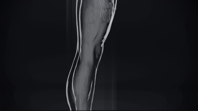 4k  x-ray of human   stock video - human muscle stock videos & royalty-free footage