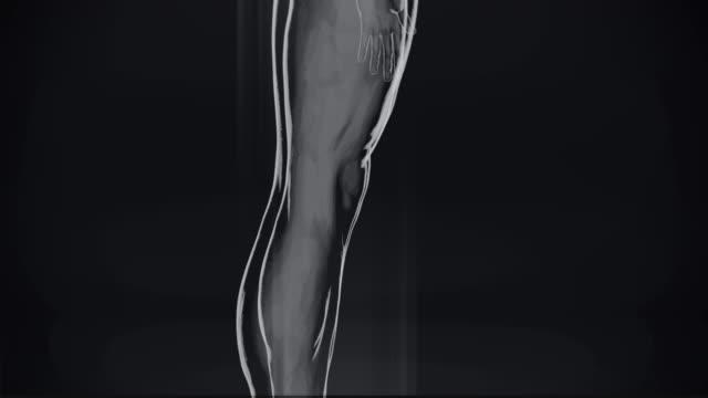 vídeos de stock e filmes b-roll de 4k  x-ray of human | stock video - tronco cerebral