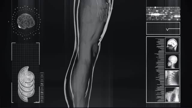 4kヒトのx線 |ストックビデオ - 脳幹点の映像素材/bロール