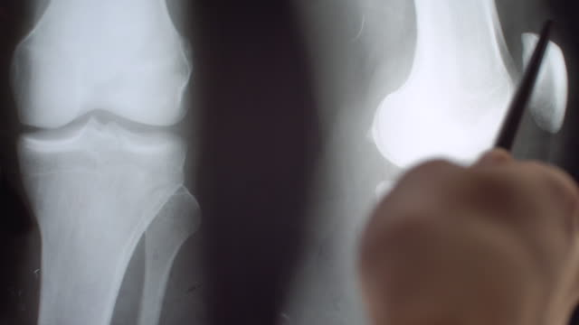 x-ray of knee - broken stock videos & royalty-free footage