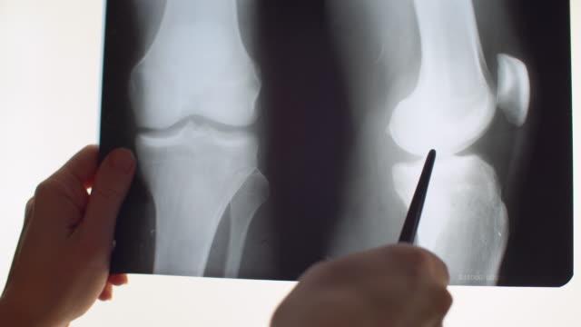 膝のx線 - 骨折点の映像素材/bロール