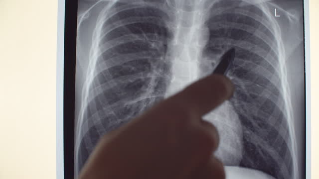 x-ray of lung - bone fracture stock videos & royalty-free footage