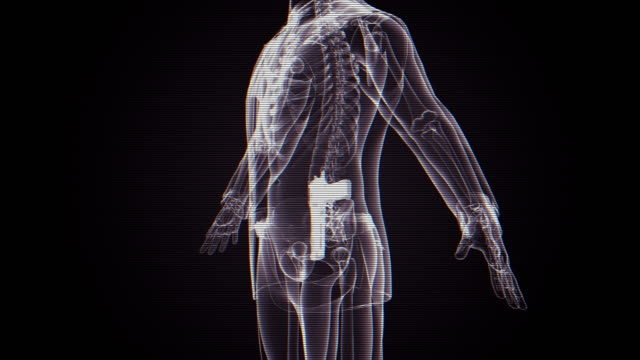 X-ray of man with gun