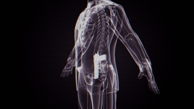 X-ray Mann mit Gewehr
