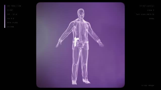 Röntgen av man med vapen | Loopable