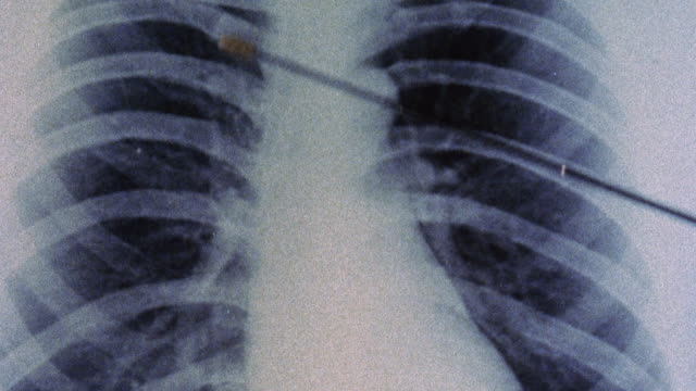 1973 montage x-ray of normal lungs and a pair infected by dust particles, causing black lung pneumoconiosis / united kingdom - lung stock videos & royalty-free footage