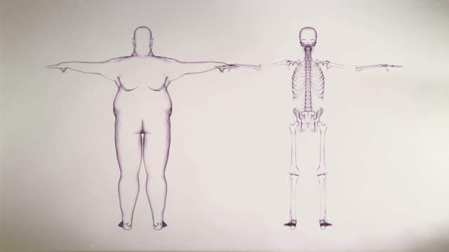 x-ray of overweight man and skeleton - biomedical illustration stock videos & royalty-free footage