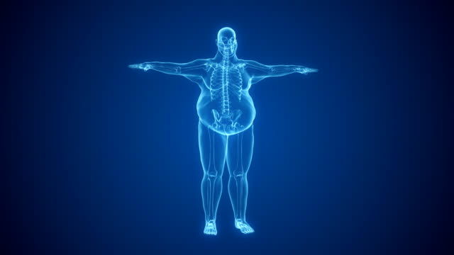 vídeos de stock e filmes b-roll de x-ray of overweight man with skeleton | loopable - estilo de vida pouco saudável