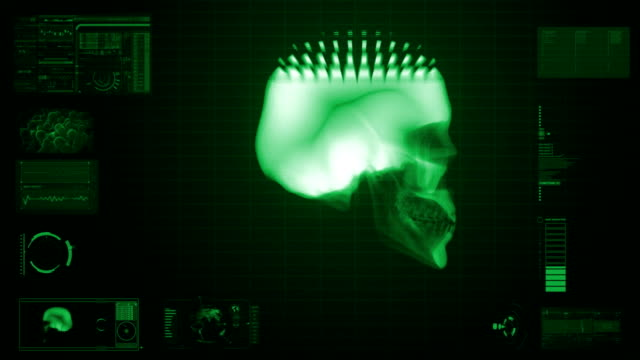 x-ray scan of skull in green - midbrain stock videos & royalty-free footage