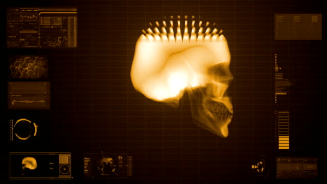 x-ray scan of skull in sepia - midbrain stock videos & royalty-free footage