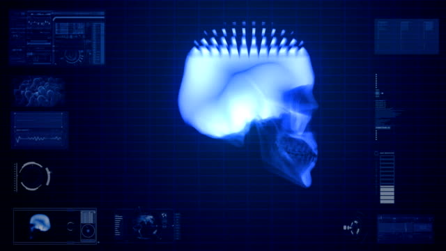 x-ray scan of skull - midbrain stock videos & royalty-free footage