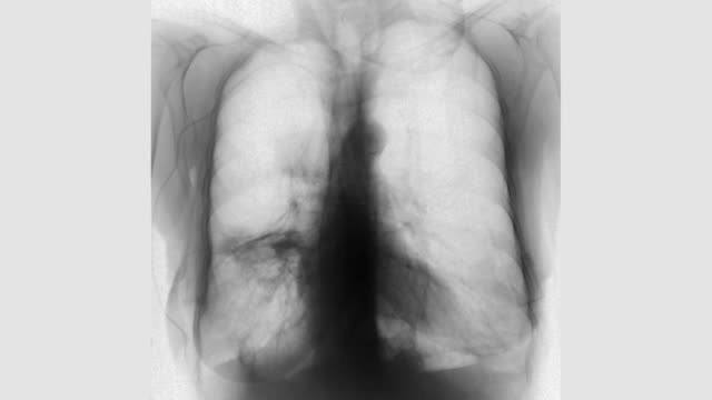 vídeos de stock, filmes e b-roll de x-ray showing chest with lung cancer - tumor