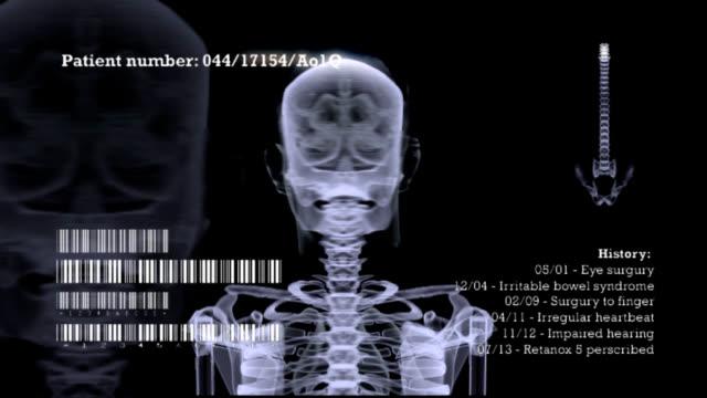 X-Ray Skeleton rotation