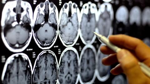 vídeos y material grabado en eventos de stock de x-ray - equipo médico de escaneo