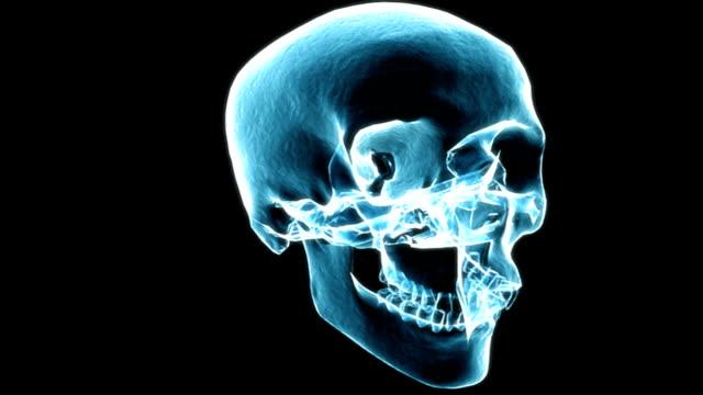 x-ray view of the skull rotating 360 degrees. - 鼻腔点の映像素材/bロール