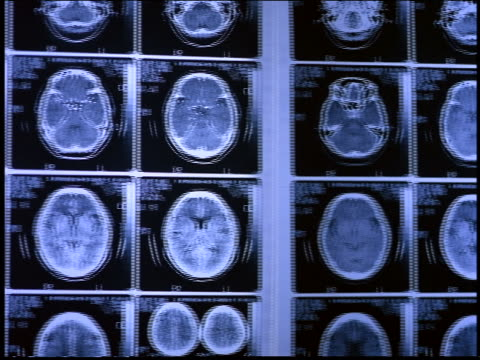 pan x-rays of brains on wall / brazil - medical x ray stock videos & royalty-free footage