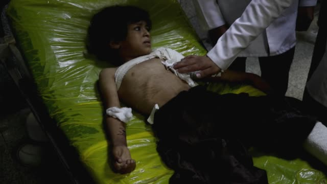 yemeni airstrike's child survivor cries while he receives treatment at a hospital after he survived airstrikes hit his house on 15, 2020 in al-jawf... - indigenous culture stock videos & royalty-free footage