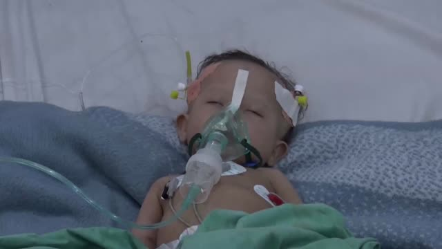 yemeni children suffering from diphtheria receive treatment at a hospital in the capital sanaa yemen on december 12 2017 the united nations has... - diphtherie stock-videos und b-roll-filmmaterial