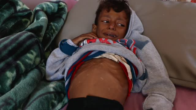 yemeni malnourished child, ameer ahmed said lies on a bed while he receives medical treatment at the malnutrition treating department in al-sabeen... - yemen stock videos & royalty-free footage