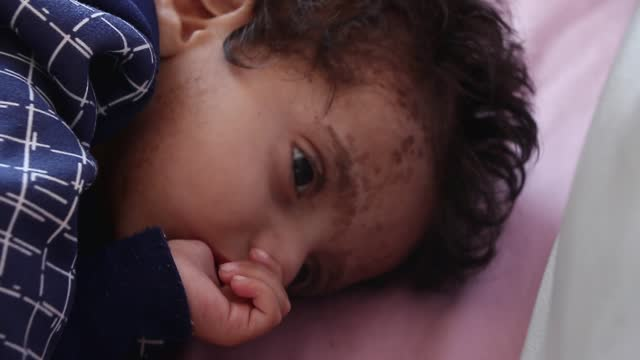 yemeni malnourished child is seen at the malnutrition treating department where he receives treatment at a hospital on april 24, 2021 in sana'a,... - yemen stock videos & royalty-free footage