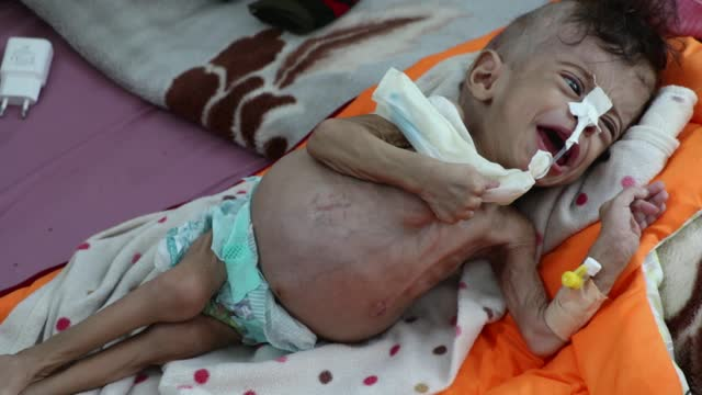 yemeni malnourished child, yasslm najm al-din al-haddad, 8-month, lies on a bed as he receives medical treatment at the malnutrition treating ward in... - hungry stock videos & royalty-free footage