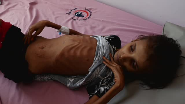 yemeni malnourished girl, ahmadiah abduh lies on a bed while she receives medical treatment at the malnutrition treating department in al-sabeen... - only girls stock videos & royalty-free footage