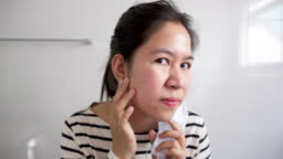 Young adult asian woman worry unhappy with skin acne or pimples from wearing face mask showing swollen, spot, scar, skin allergy on chin and cheek in mirror in maskne covid-19 social distance concept.