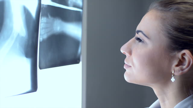 Young beautiful female doctor examines the x-ray picture.